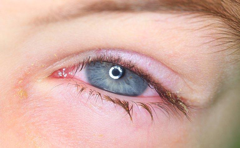 Blepharitis: Was tun bei einer Lidrandentzündung? - Brille24